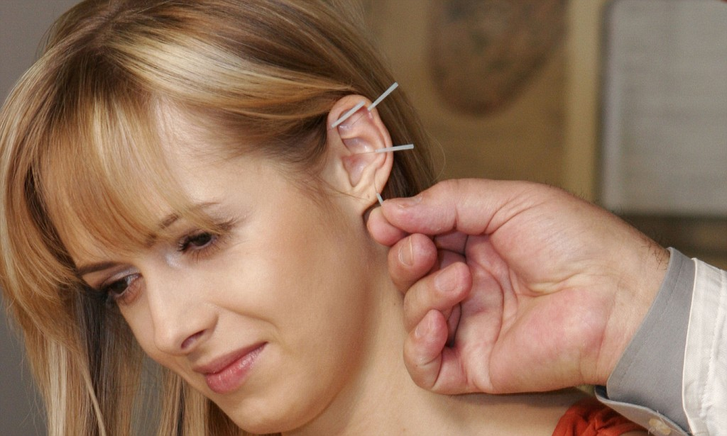 Inserting Acupuncture Needles to the Ear