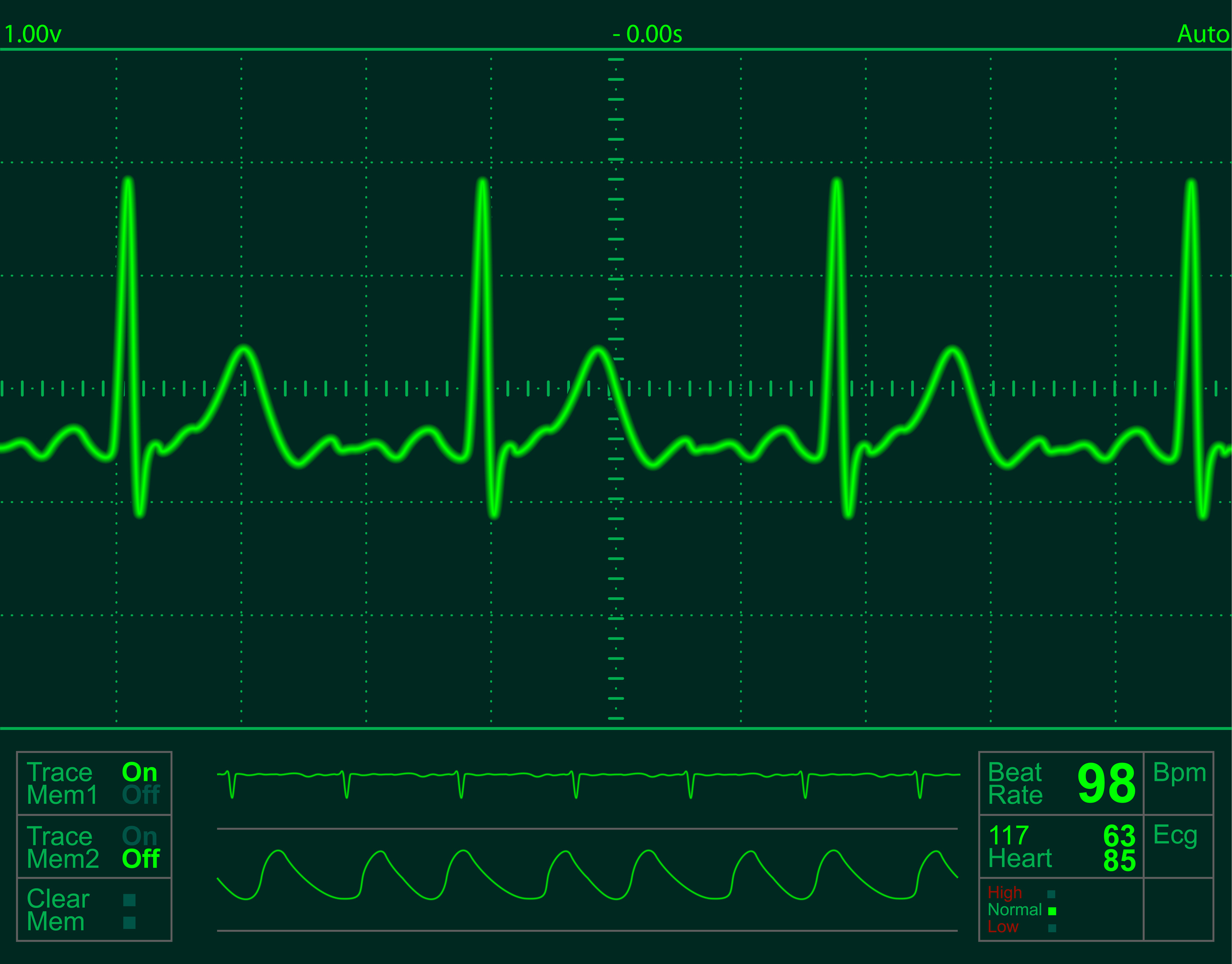 heart monitor screen