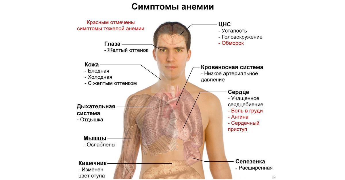 anemia_3